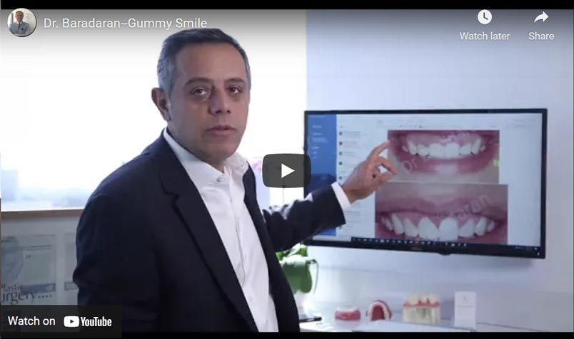 Dr. Baradaran Gummy Smile Click to View Video